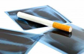 טיפ מספר 3 – סטאטוס מעשנים בביטוח חיים